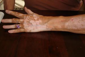 A pigmenthiányos bőr komoly betegség